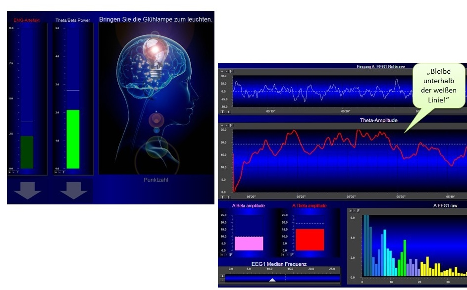 Neurofeedback_Behandlung_Trainingsscreen.jpg
